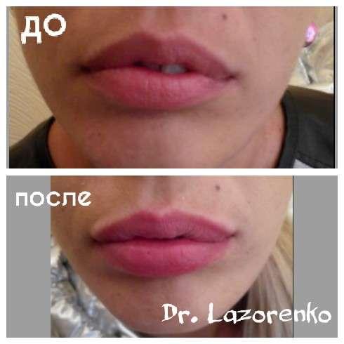 увеличение губ, заполнения морщин, мезотерапия, биоревитализация