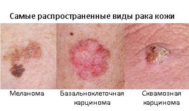 РАК КОЖИ 1, 2, 3, 4 стадии степени. Лечение Меланомы, Базалиомы, Киев