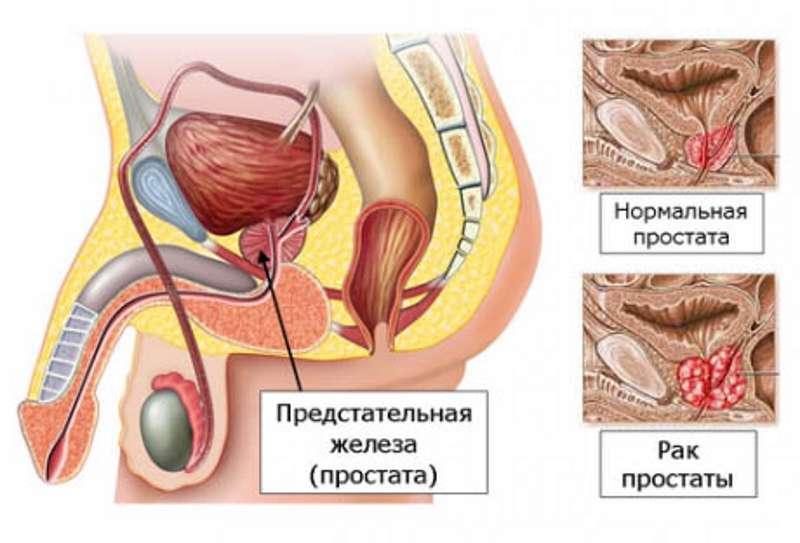 РАК ПРОСТАТЫ (предстательной железы) 1, 2, 3, 4 стадии ЛЕЧЕНИЕ в Киеве