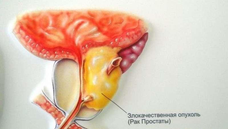 Как лечит рак простаты с болиголовом