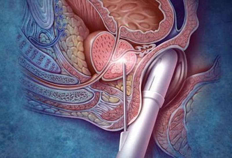 Лечение рака простаты в киеве
