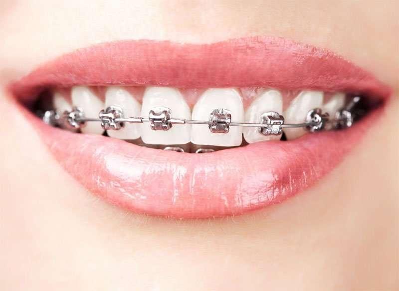 Надежные брекет-системы для детей и услуги ортодонта