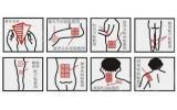 Пластырь ортопедический Douan- ишиасе, пояснично-крестцовый радикулит